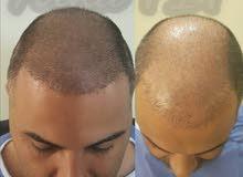 زراعة الشعر مع الضمان100في100