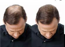 توبيك الياف الكيراتين غطاء الشعر toppik hair fiber 27.5g