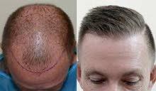 زراعة الشعر وتجميل الانف وزراعة العدسات