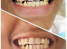 طبيبة أسنان مقيمة بالدمام