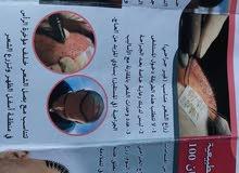 عیاده زراعت الشعر الطبیعی ضمان ۱۰۰ % فی ایران