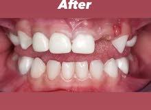 طبيبة اسنان عراقية اختصاص