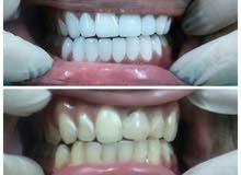 طبيب اسنان عام خبره بالتقويم