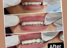 مطلوب طبيبات اسنان في مركز اسنان بالضليل الزرقاء