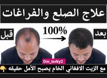 معالجة تساقط الشعر وظهور الصلع المبكر وانبات فراغات الشعر ومعالجة الثعلبه