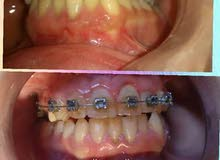 طبيب تقويم اسنان سوري .. مطلوب عقد عمل