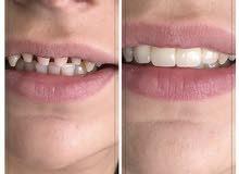 Dental policlinique in antalya center