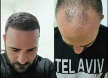 علاج تساقط الشعر ومحاربة الصلع المبكر