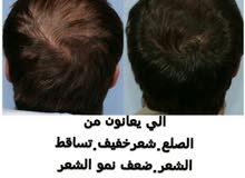 لكل من يعاني من تساقط الشعر