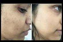 تصفية الوجه والقضاء على البقع الداكنة و الكلف بمواد طبيعية