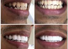 دلل اسنانك مع ابتسامة هوليوود