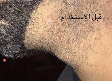 لزيادة نمو شعر الرأس و الذقن و اللحية