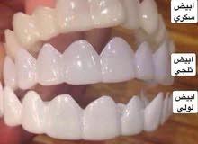 فينير اسنان متحرك