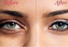 كريم لعلاج الهالات السوداء والانفتاح تحت العين