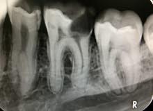 طبيب اسنان خبرة  سنة