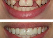 زراعة اسنان  استعيد ابتسامتك في جلسة واحدة