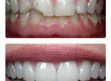فني مختبر أسنان أبحث عن عمل خبرة كبيرة