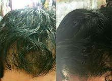 مجموعة تساقط الشعر والنبات الفراغات وتطويل العناية بالشعر
