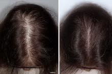 حل تساقط الشعر وداعا للشعرالخفيف واهلا بالشعر الكثيف.