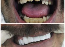 طبيب اسنان خبره 13 عام ابحث عن عمل في مدينة الرياض