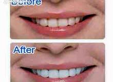 جهاز تبيض الاسنان white lighte