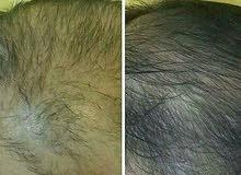 حل مبهر وفعال لجمال الشعر وكثافته وزيادة طوله ولمعته