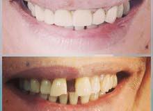افتتاح مركز ليبرتي البصرة لطب الاسنان والتجميل
