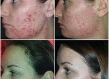 المنتج المستورد من الخارج لعلاج اى مرض ف الوجه