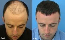 عرض خاص زراعة الشعر