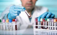 مطلوب فني مختبر طبي/A medical laboratory technician is required