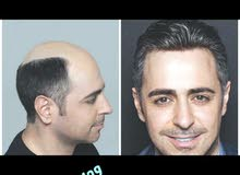 تثبيت وتركيب جميع انواع الشعر الطبيعي
