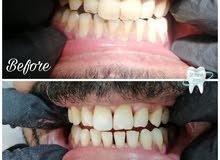 مطلوب طبيب او طبيبه عام اسنان