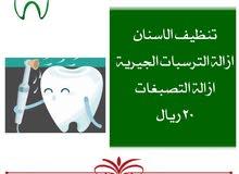 تنظيف الاسنان ب20 فقط
