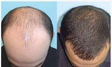 الحل النهائي لمشاكل الشعر