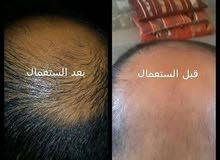 اجعل شعرك ينمو من جديد