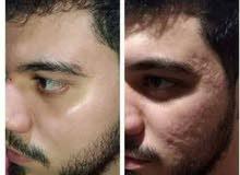 كريم تجميلي يساعد ع اخفاء الانتفاخات تحت العين وعلامات التقدم بالسن