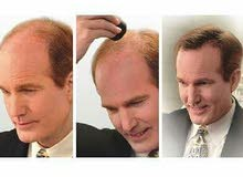 dexeالياف الشعر