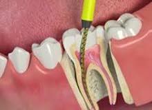 طبيبة اسنان تبحث عن عمل general dentist