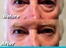Jessunne Instantly Ageless