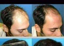 استعيد شعرك