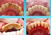 dental Hygienist أخصائي صحة الفم والأسنان يبحث عن عمل في مجال الصحة الفموية dental Hygienist