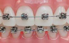 اخصائي تقويم اسنان