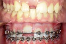 طبيب نائب في تقويم الأسنان والفكين