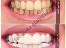 تبيض الأسنان للرجال والنساء مع الخبيرة صابرين