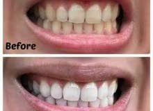 جهاز ليزر الأسنان للتبييض المنزلي