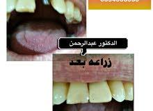 عروض على زراعة الأسنان مع الدكتور عبدالرحمن