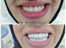 طبيب أسنان خبره 10 سنوات حاصل على ترخيص وزاره الصحه