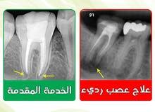 علاج عصب أسنان ممتاز