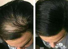 زيت يعالج مشاكل شعر