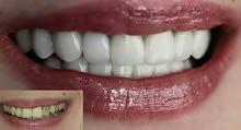 زراعة وتركيبات الأسنان